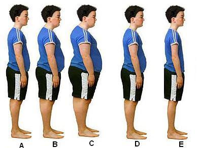 obesidad_gordura_ORDENAR